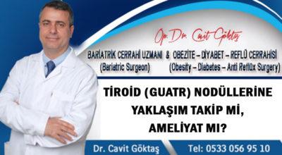Tiroid (Guatr) nodüllerine yaklaşım takip mi, ameliyat mı?