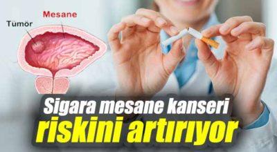 Sigara, mesane kanseri riskini artırıyor